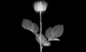 Ignazio Causarano hospice tulipano cctm amore arte bellezza cultura poesia italia latino america miglior sito letterario miglior sito poesia cancro